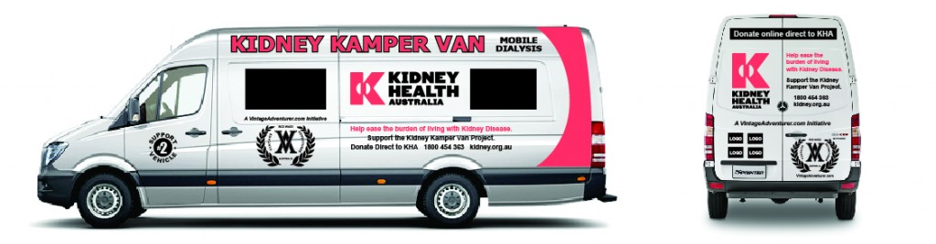 A mock up of the Kidney Kamper van